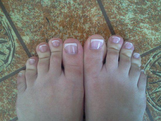 Trị nấm móng chân