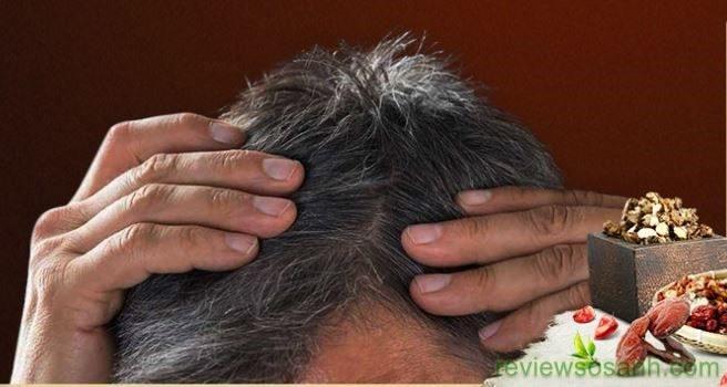 bạc tóc ở nam giới