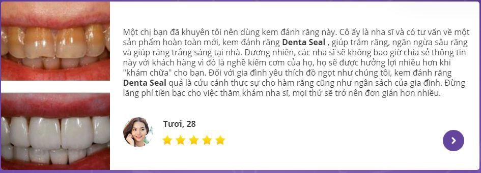 review kem làm trắng răng denta seal-min