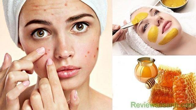 Bột nghệ và mật ong thần dược trị mụn bọc