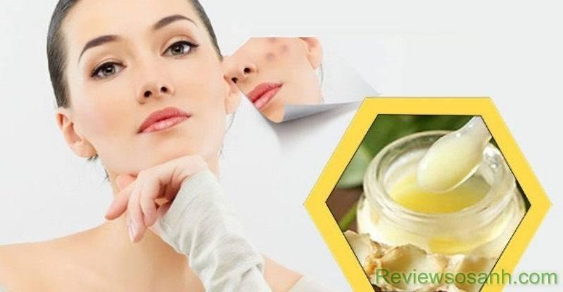 Cách sử dụng sữa ong chúa để trị mụn trứng cá
