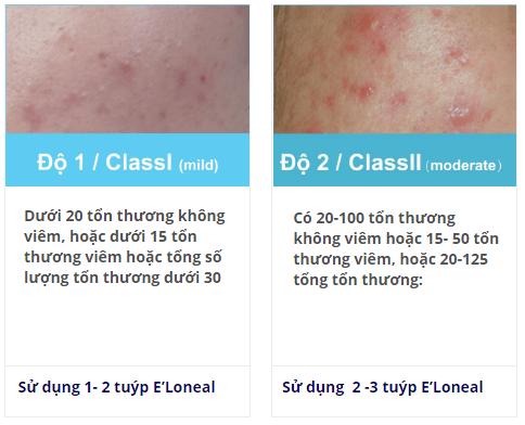 liệu trình điều trị mụn với e'loneal king độ 1-2