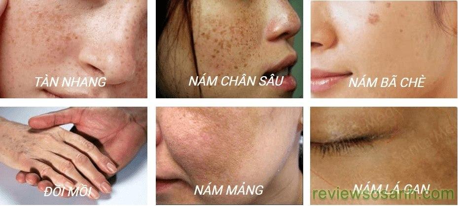 các loại nám da thường gặp