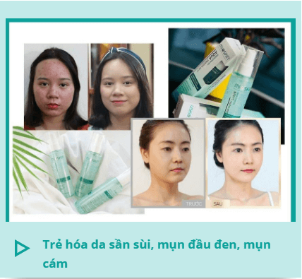 da mụn, da sần sùi cải thiện sau khi dùng mioskin