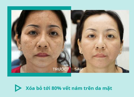 mioskin trị nám da hết 80%